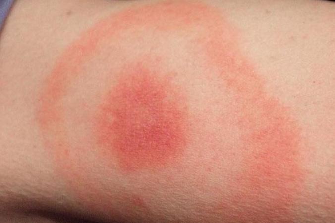 EM (erythema migrans) or bulls-eye rash
