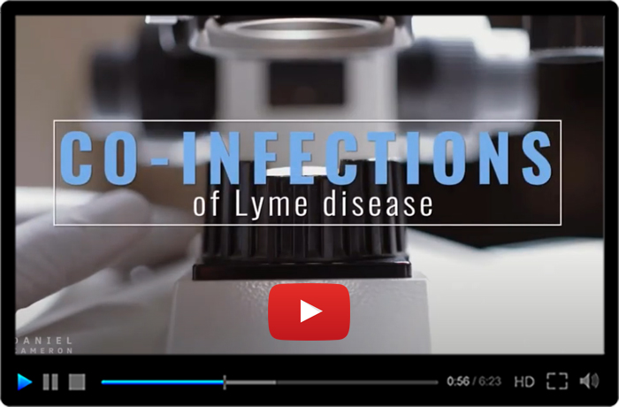 Signs and Symptoms of Lyme Disease