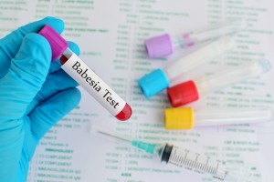 Blood sample for babesia parasite testing