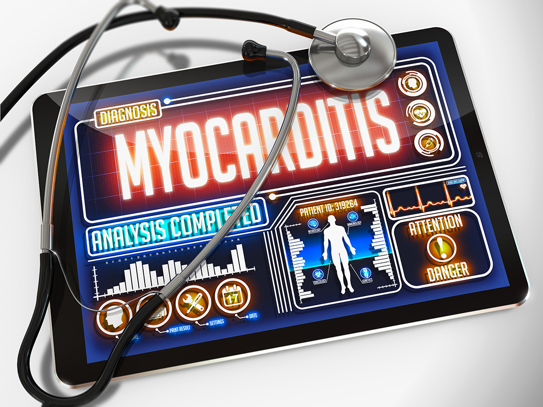 How Lyme myocarditis might present in an adolescent patient