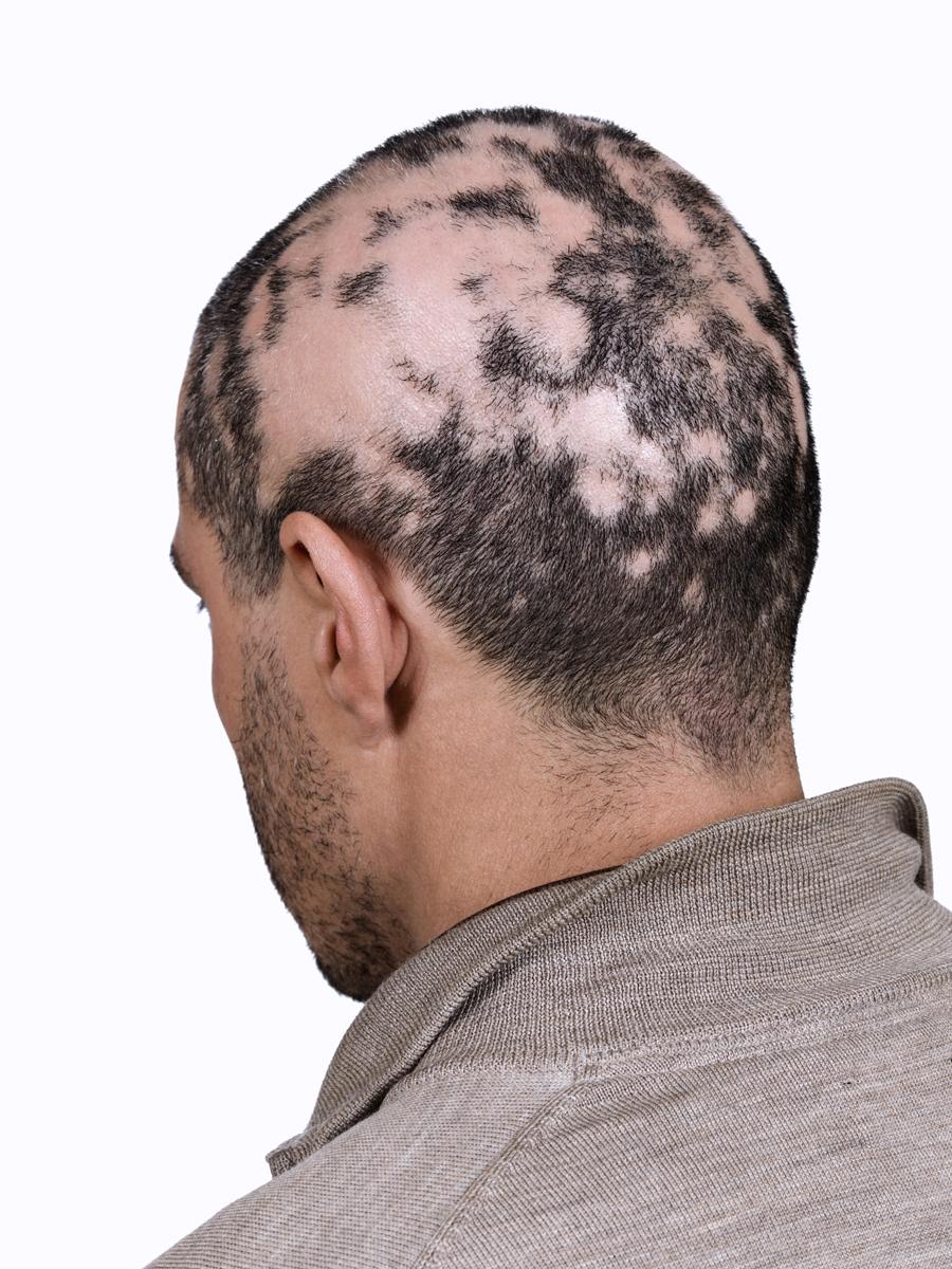 Hair Loss In Lyme Disease The Last Straw Daniel
