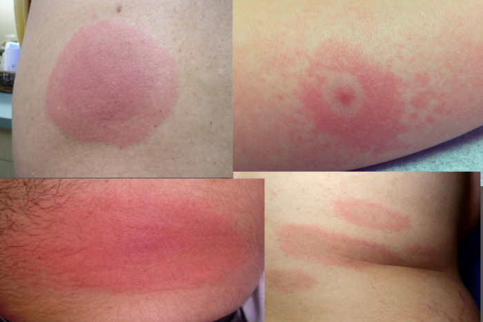 photos of what does a Lyme disease rash look like look-like