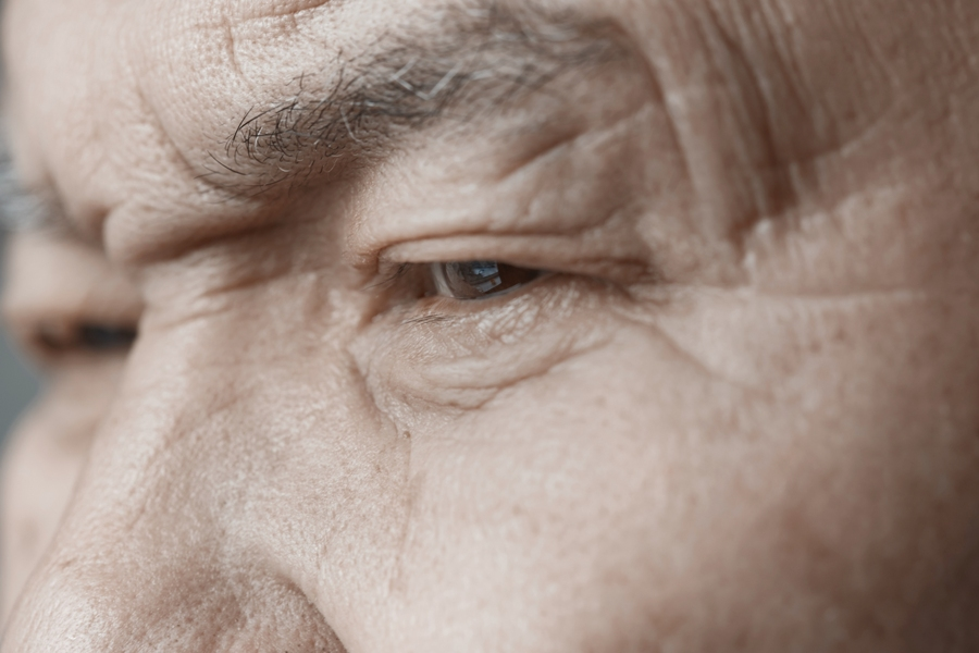 facial palsy from lyme disease in elderly man