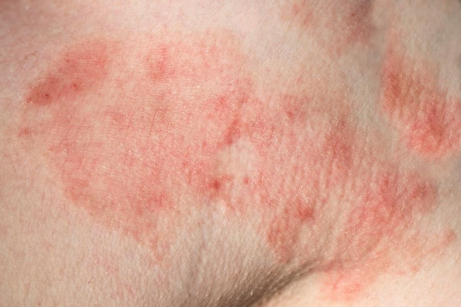 Patient with Lyme disease skin rash