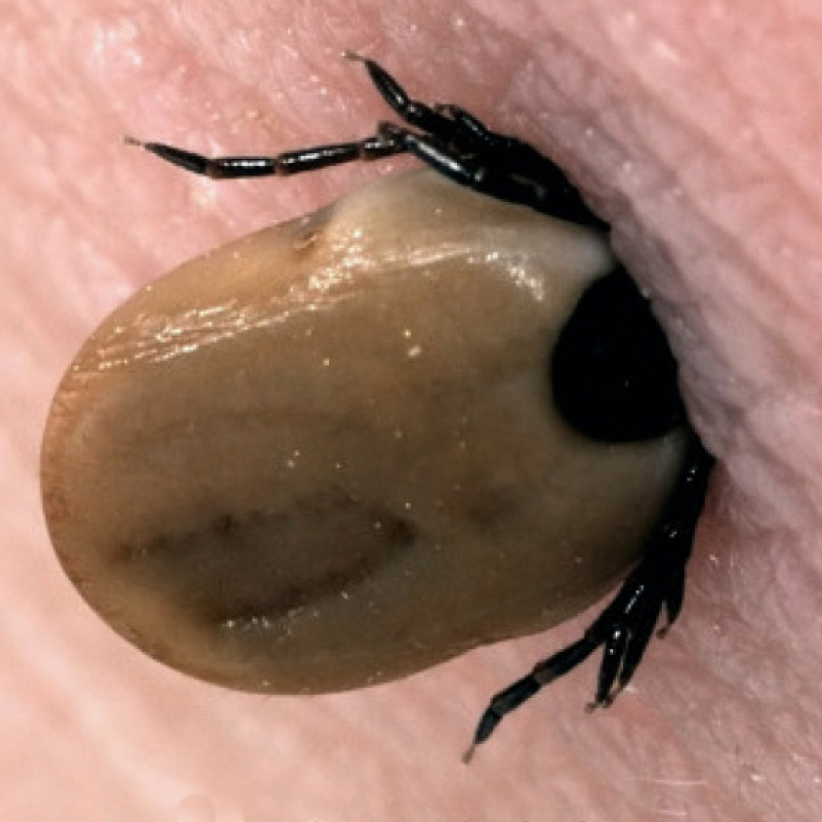 Guidelines for treating a tick bite